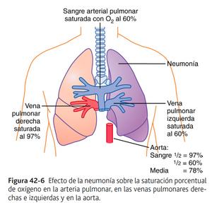 efecto dee la neumonía sobr ela saturación porcentual de oxígeno en la arteria pulmonar, en las venas pulmonares derechas e izquierdas y en la aorta