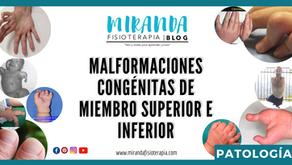 Malformaciones congénitas de miembro superior e inferior