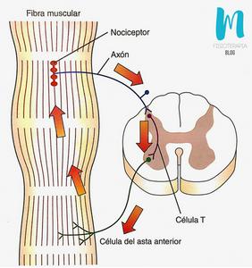 ciclo dolor-espasmo-dolor