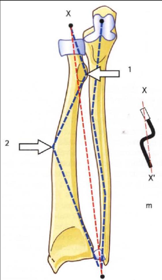 Músculos de la pronosupinación: Forma del radio