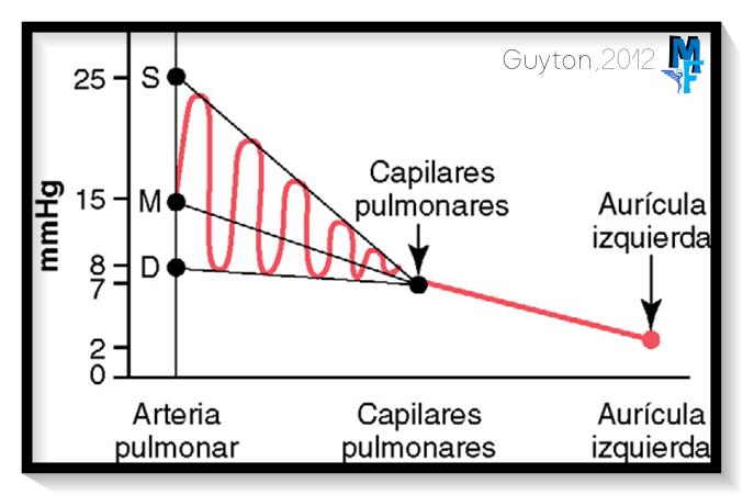 PRESIONES DE LA ARTERIA PULMONAR, CAPILAR PULMONAR Y LA AURICULA IZQUIERDA