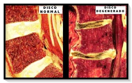 comparación disco normal vs disco degenerado
