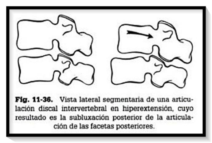 hiperextensión segmentaria