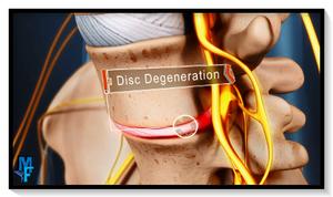 disco degenerativo