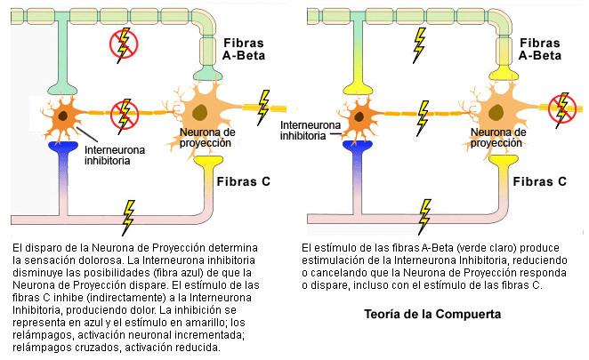 Explicación de la teoría de la compuerta o gate control