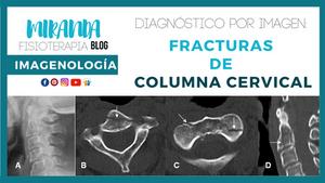 diagnóstico por imagen: fracturas de columna cervical