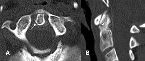 A: TAC axial y B: TAC reconstrucción lateral. Imagen radiolúcida y en sentido oblicuo, en la parte superior de la odontoides,que corresponde a fractura no desplazada. (Flechas).