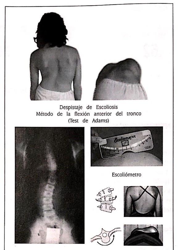 test de adams y escoliometro de Bunnell