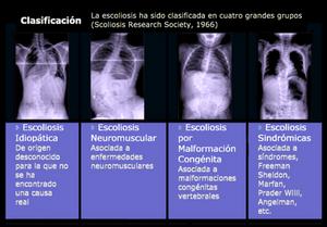 clasificación de la escoliosis