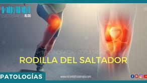Tendinopatías rotulianas: Rodilla del saltador