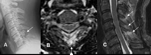 Fractura del peleador de arena: A: Rx lateral. Fractura desplazada en la apófisis espinosa de C6. B: RM axial en T2 y C: RM sagital en STIR. Cambios inflamatorios en los tejidos blandos e hiperintensidad, por lesión de los ligamentos interespinosos.