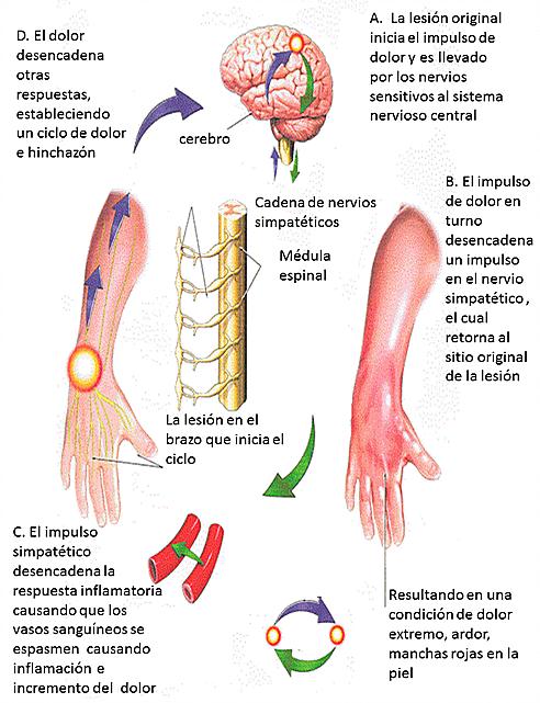 etiopatogenia del síndrome de sudeck