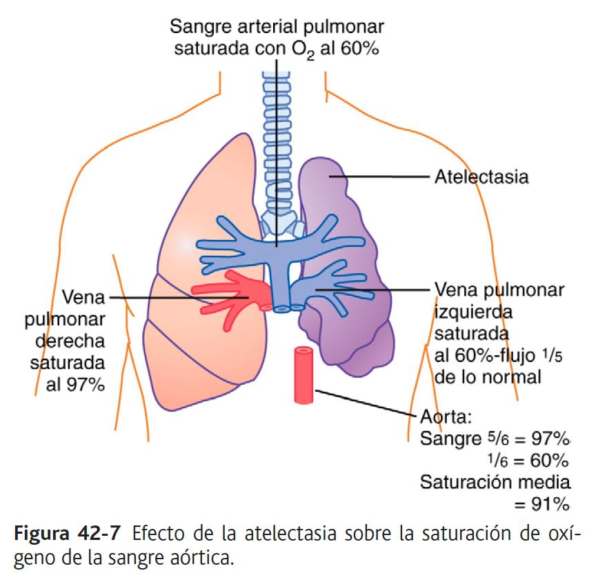 efecto de la atelectasia sobre la saturación de oxígeno de la sangre aórtica