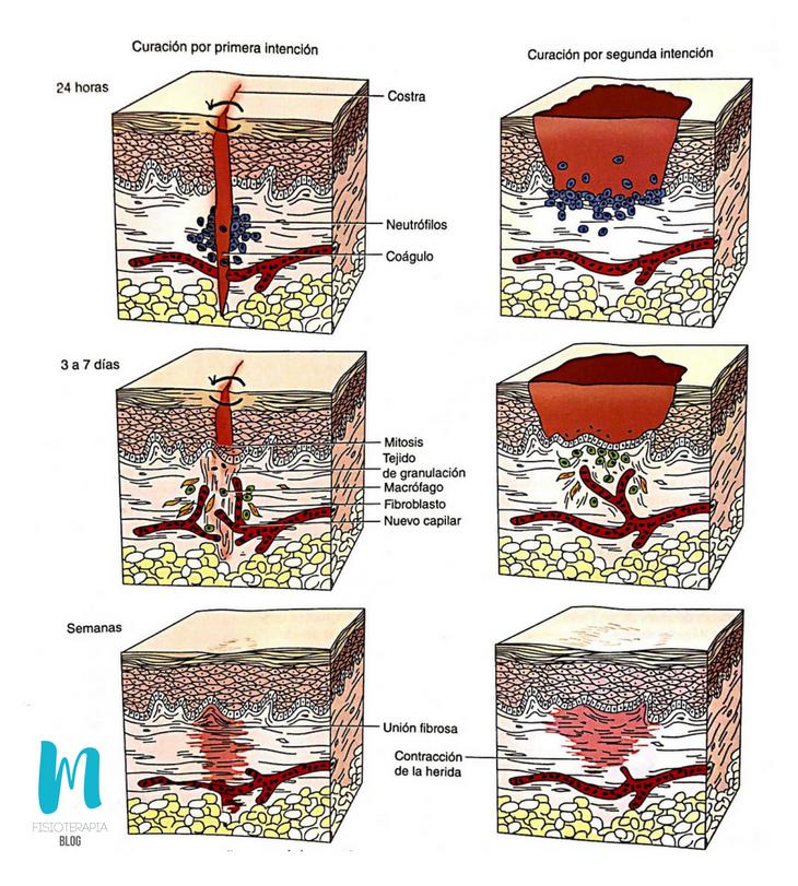 Contracción de la herida: unión primaria o unión indirecta