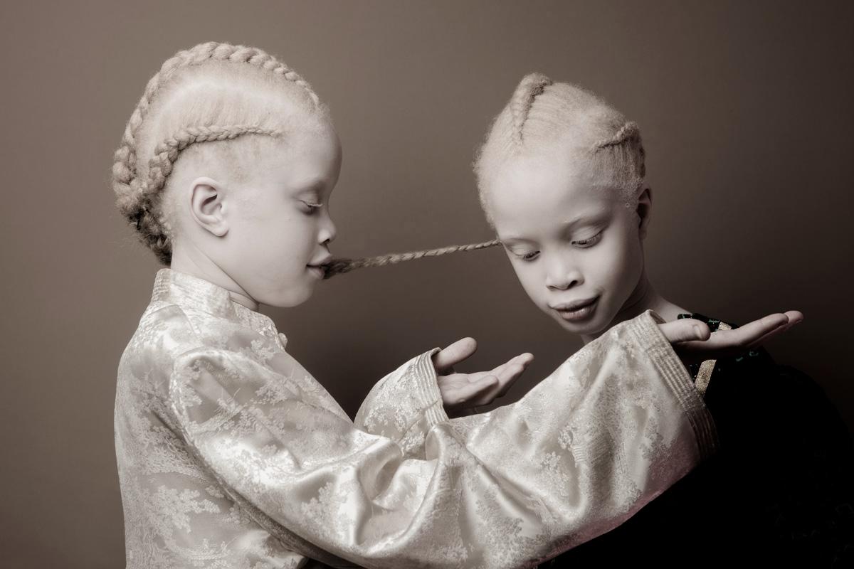 vinicius-terranova-albino-twins-17v2