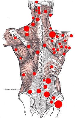musculature tendue congestionnée