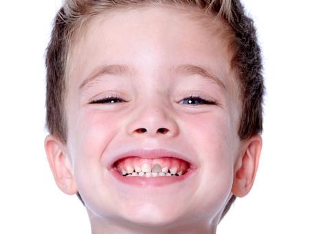 Dentes escuros: quando e por que isso ocorre?