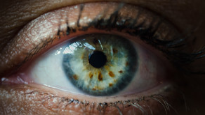"The ""Eyes"" Have It - Iridology and Sclerology"