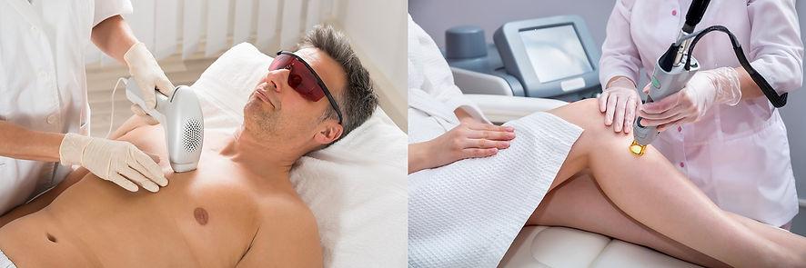 Epilation laser homme et femme