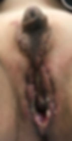 Penile Preservation Vaginopasty post-op day 7