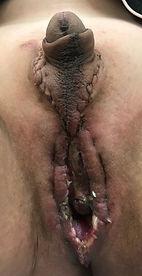 Penile Preservation Vaginopasty post-op day 7
