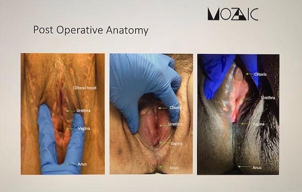 AnatomyPostop_edited.jpg