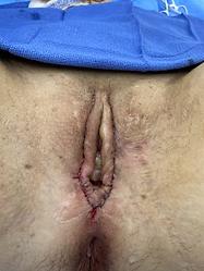 post-surgery.jpeg