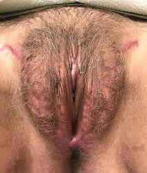 3 months post-op