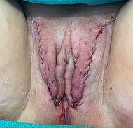 Primary Peritoneal Pull Through Vaginoplasty by Dr. Adam Bonnington