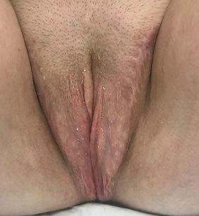6 months post-op