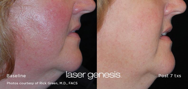Laser Genesis Rosacea