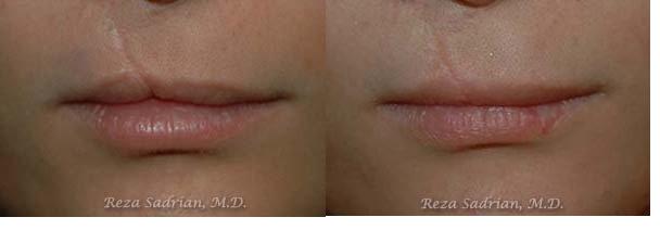 laser genesis scar revision
