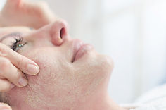 Facial peels in the beauty spa salon. Ma