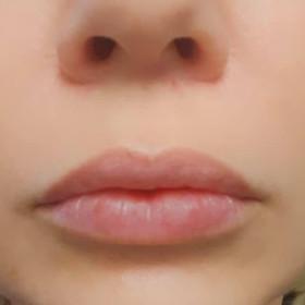 Versa lips