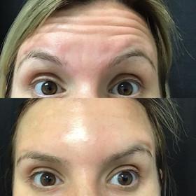 Botox_Jeuveau