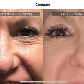 Plasma Pen Lower eyelids