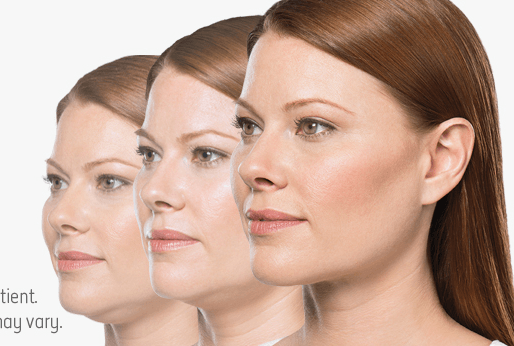 Ditch the Dreaded Double Chin With Kybella