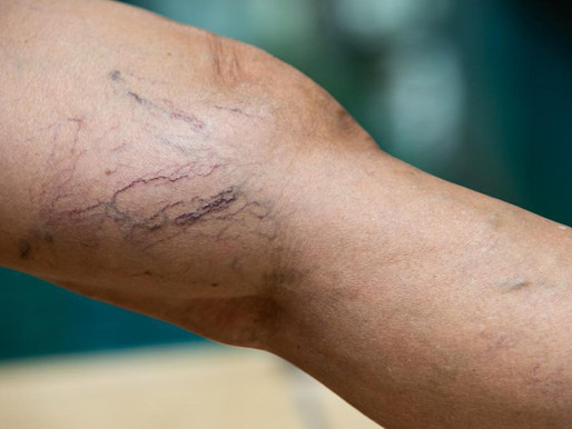 Here's How You Can Get Rid of Spider Veins