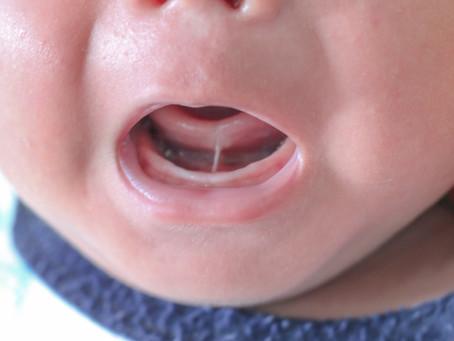 Tongue Tie (舌小帯短縮症)その1