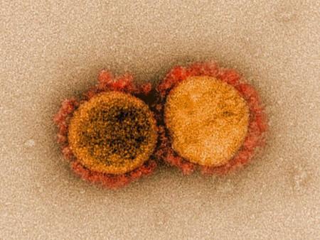 미국 CDC 연구결과, 60초 만에 71건의 감염 사례