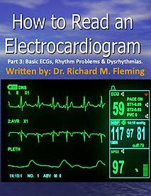 Electrocardiograms - Part 3.jpg