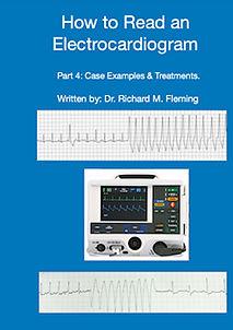 Electrocardiograms - Part 4.jpg