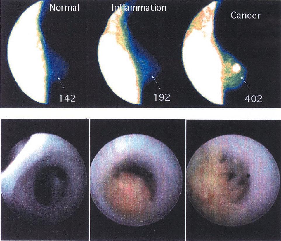 FlemingMethod Measures Changes in Breast Cancer.jpg