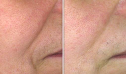 Sillon naso-génien - Femme de 60 ans