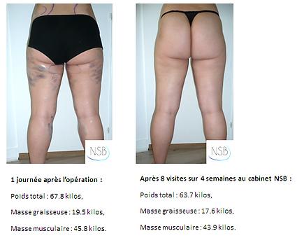 Endermologie, montreux cellu m6, vevey cellu m6, anti-cellulite, perdre du poids