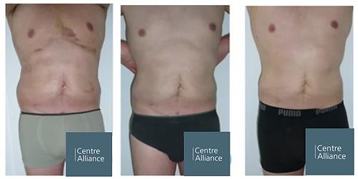 abdominoplastie resultats.PNG