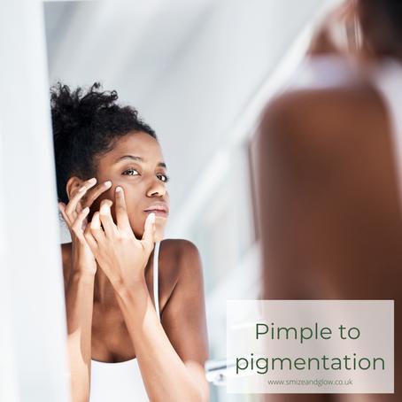 Pimple to pigmentation