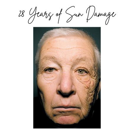 28 Years of Sun Damage