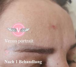 Tattoo Entfernung bei Venus Portrait