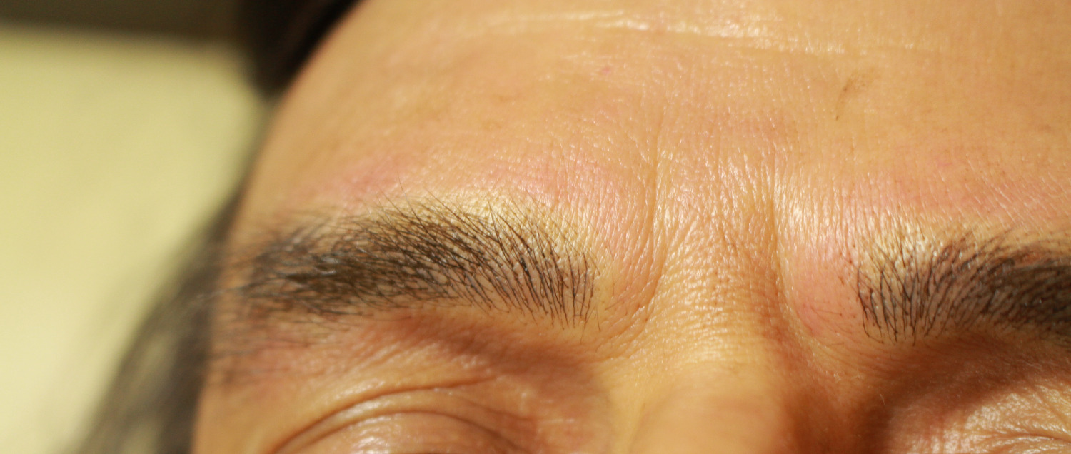 healed eyebrow